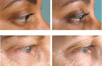 eyelash-serum-before-after-2