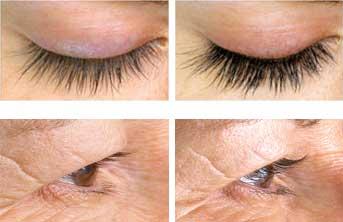 eyelash-serum-before-after